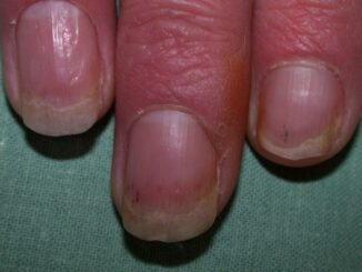 11 Effective natural home remedies to cure nail psoriasis