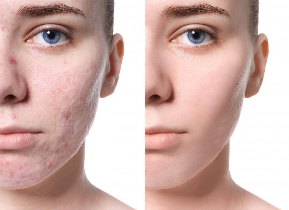 How easily to get rid of acne scars naturally