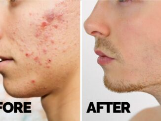 How to get rid of acne fast & naturally