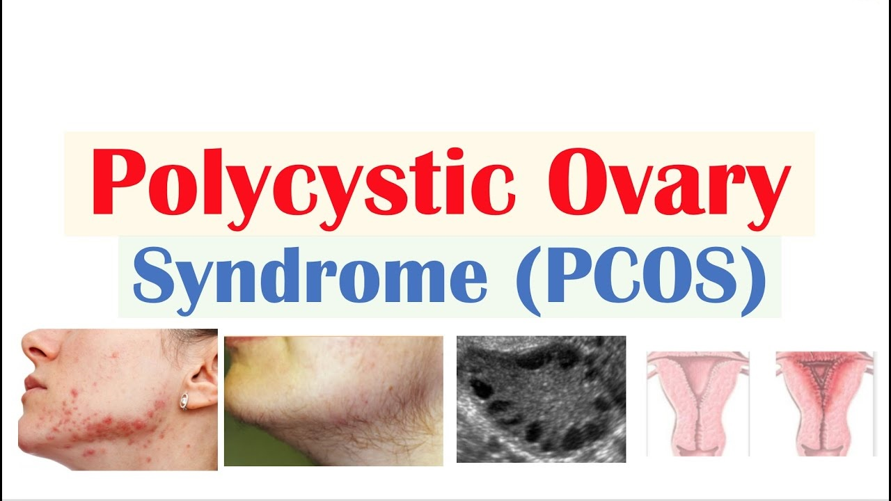 Polycystic Ovary Syndrome (PCOS): Symptoms, Cause, and Treatment
