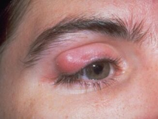 Most common eye diseases in human being and how to prevent them