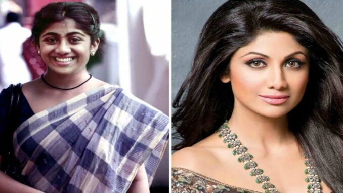 8 Bollywood Celebrity Plastic Surgery Before and After