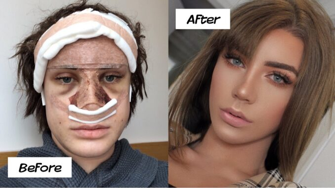 10 WORST PLASTIC SURGERY DISASTERS AFTER HIROMSHIMA