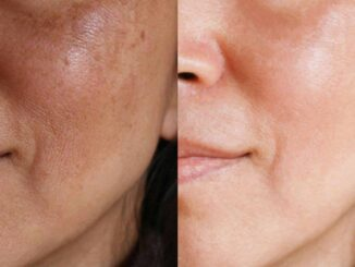 5 Tips for Achieving More Even Skin